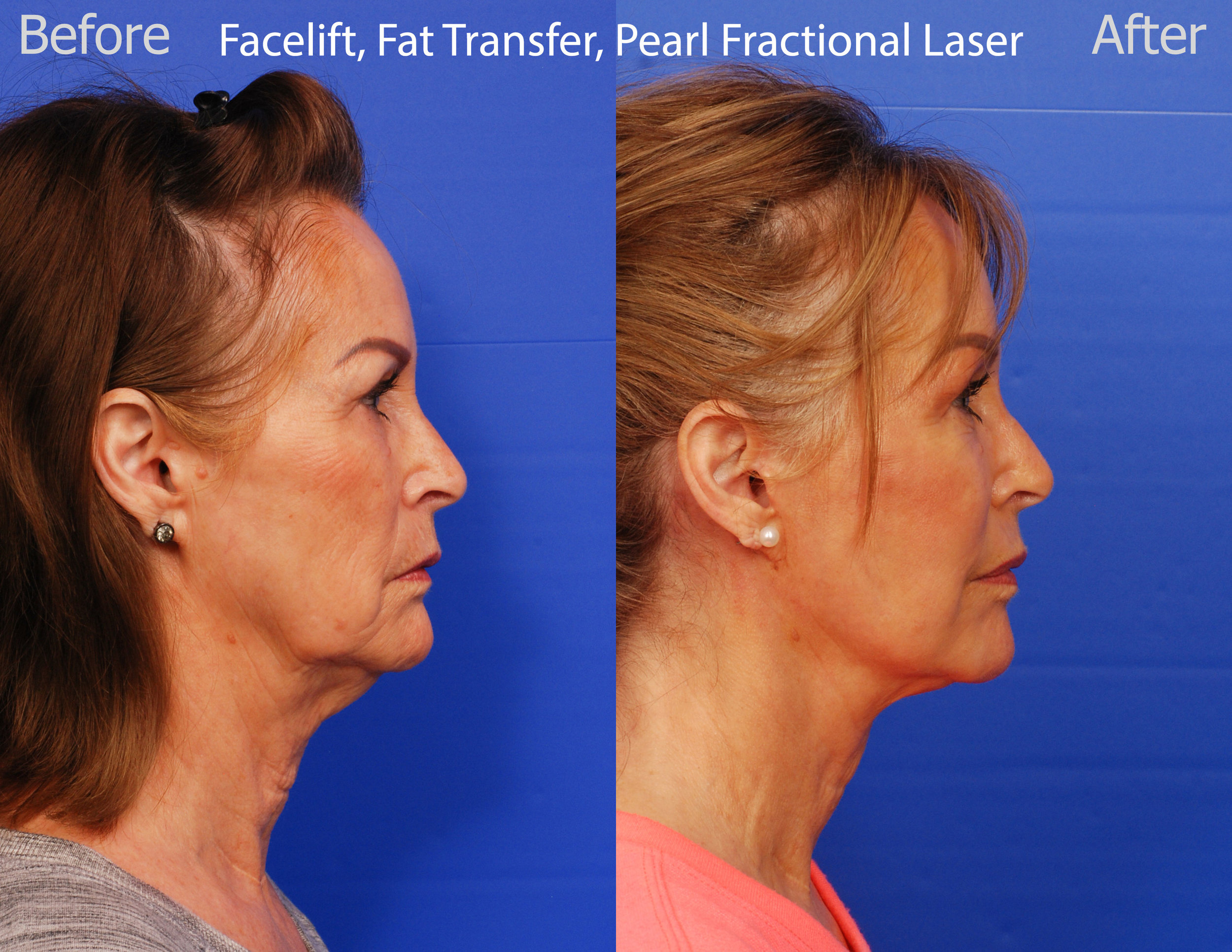 Facelift, Pearl Fractional Laser and Fat Transfer - San Diego
