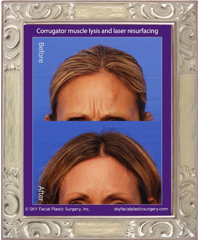 Corrugator muscle surgery