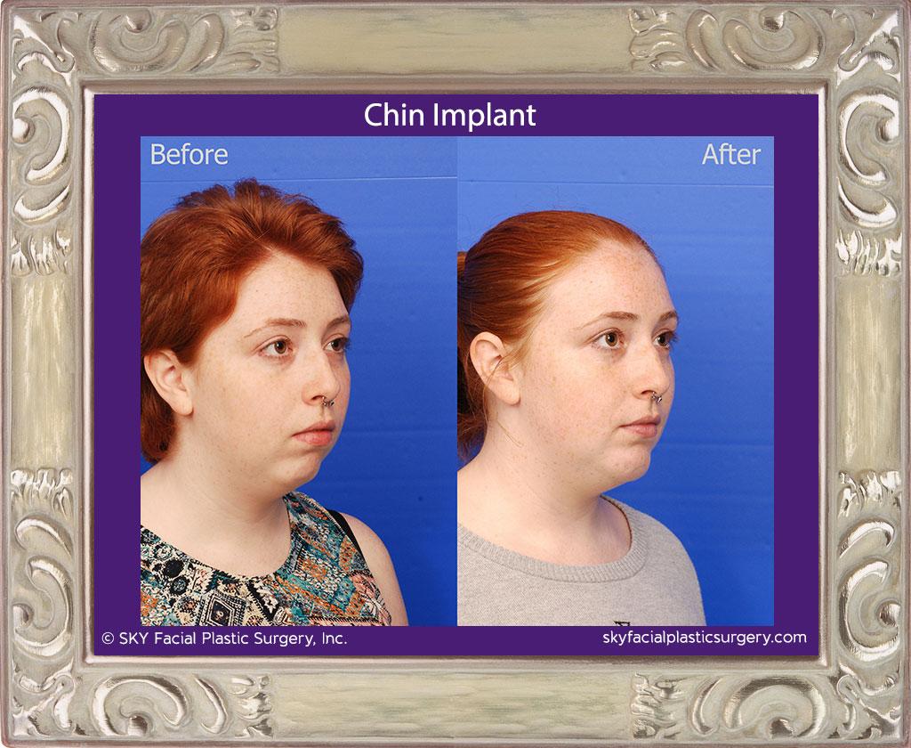 Chin-Implant-1D.jpg