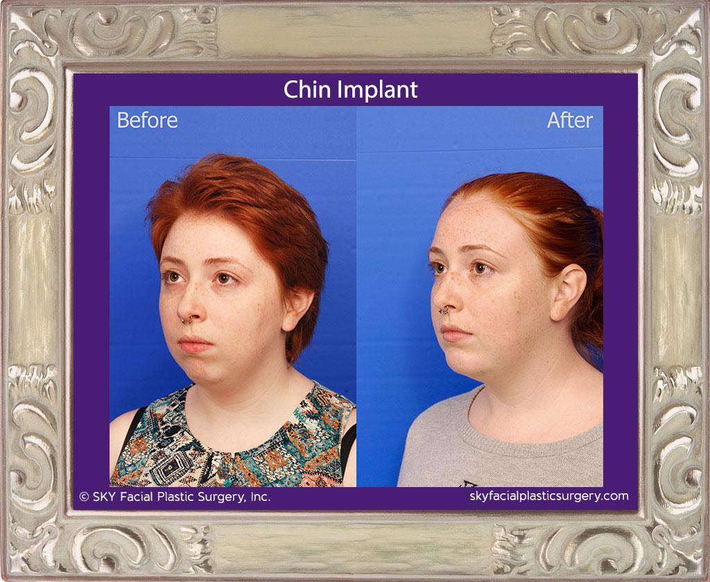 Chin-Implant-1C.jpg