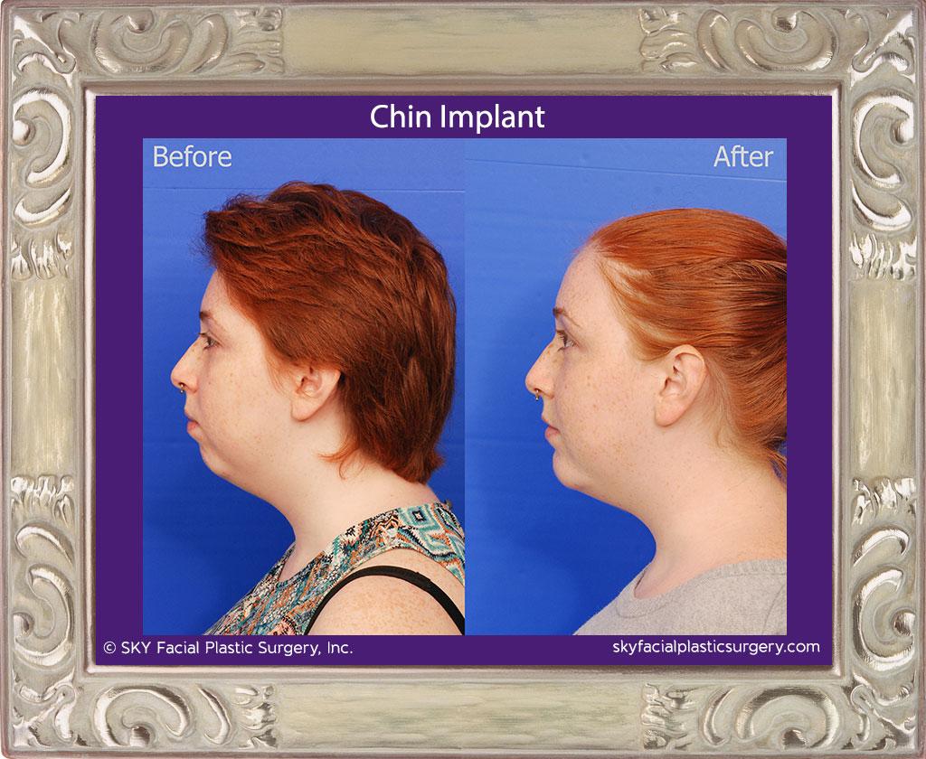 Chin-Implant-1B.jpg