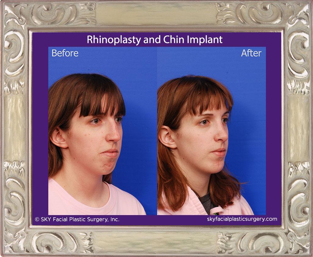 SKY-Facial-Plastic-Surgery-Rhinoplasty-40D.jpg