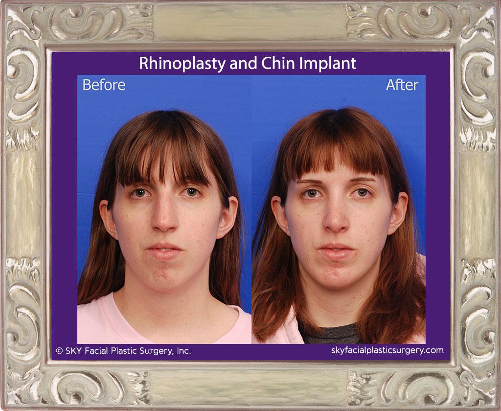 SKY-Facial-Plastic-Surgery-Rhinoplasty-40A.jpg