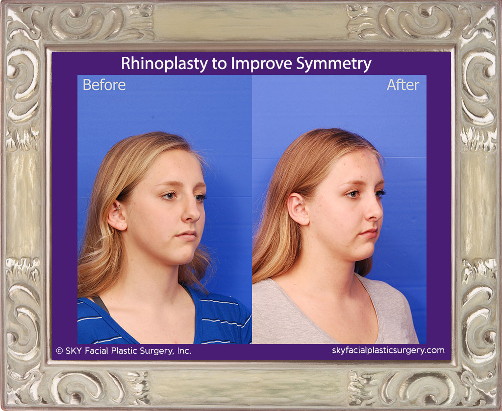 SKY-Facial-Plastic-Surgery-Rhinoplasty-50E.jpg