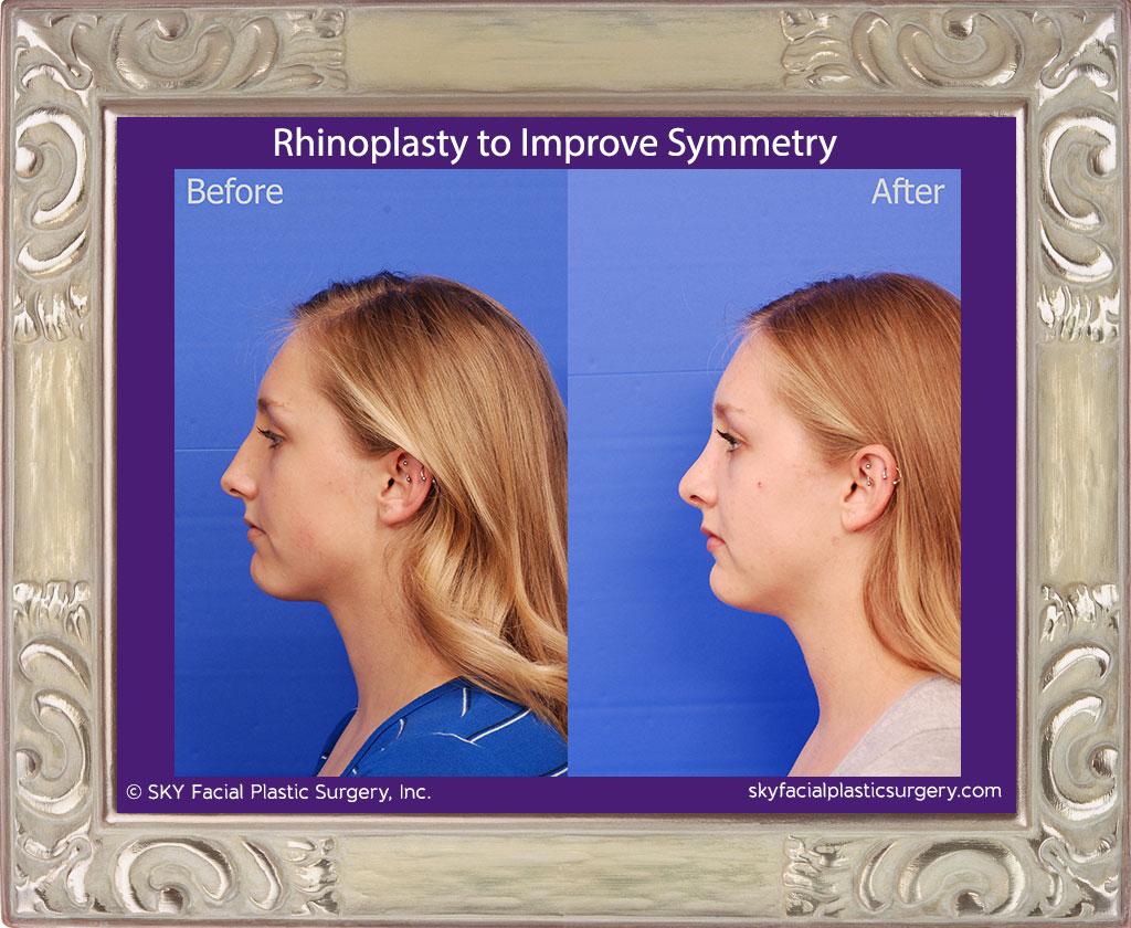 SKY-Facial-Plastic-Surgery-Rhinoplasty-50C.jpg