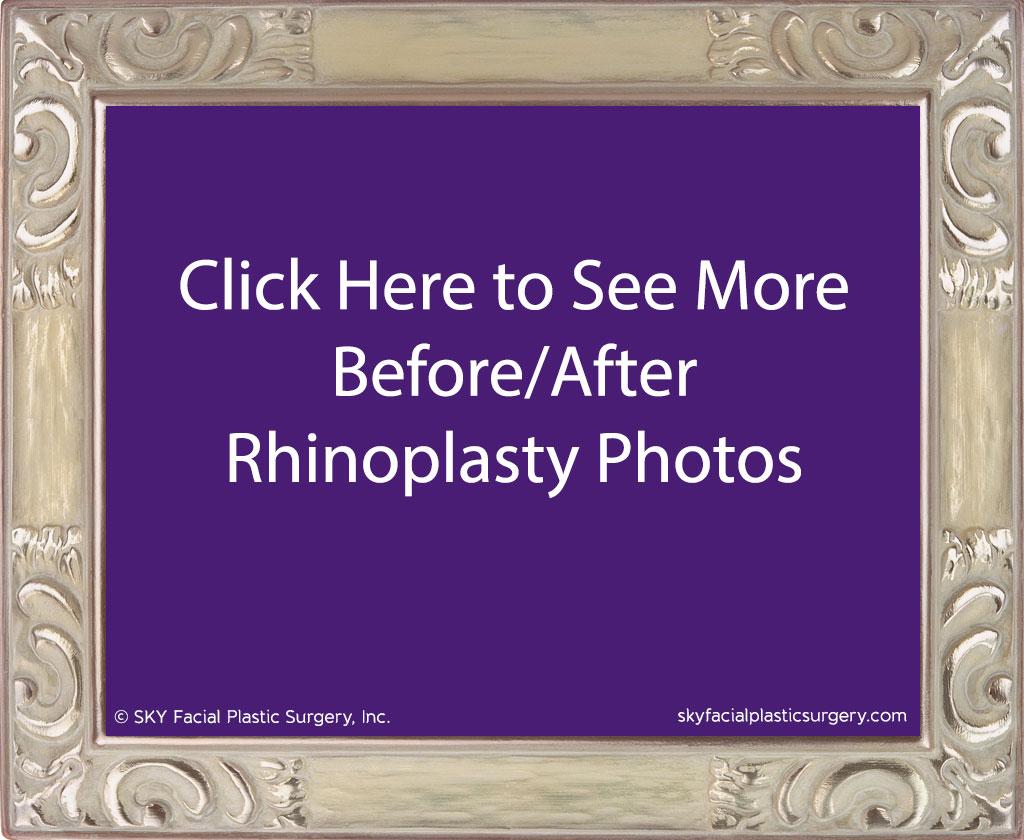 Click-Here-Frame.jpg