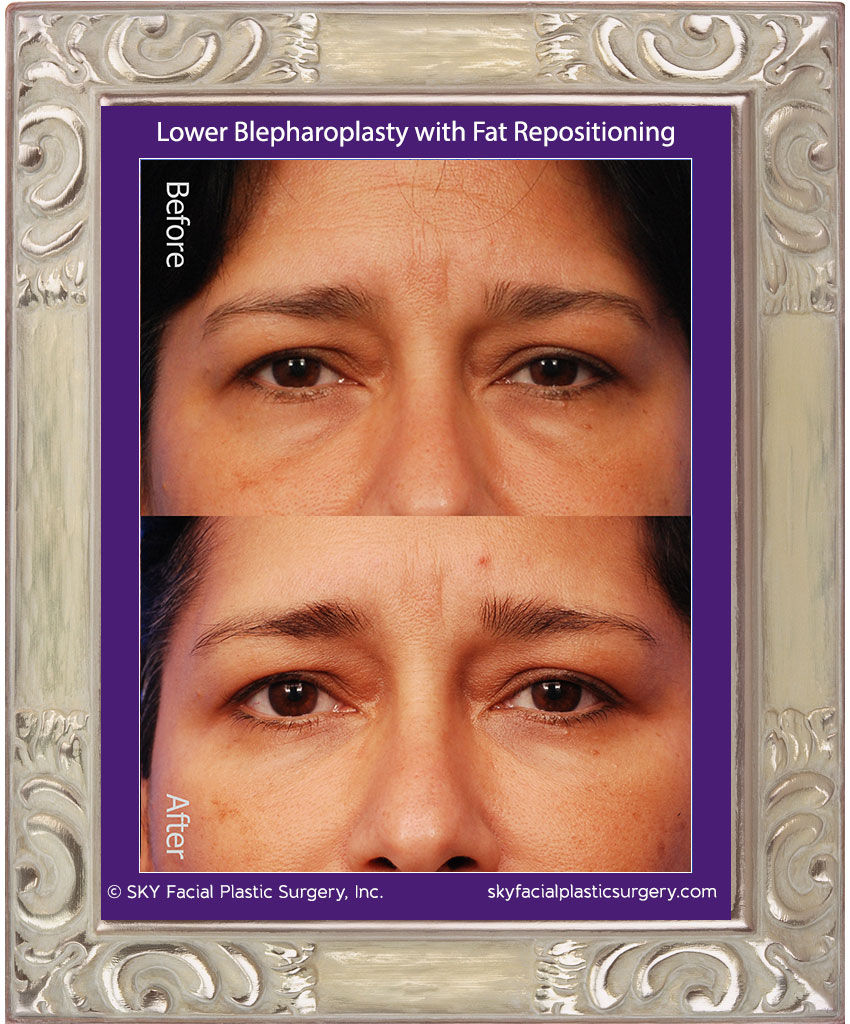 Transconjunctival lower blepharoplasty with fat repositioning - San Diego