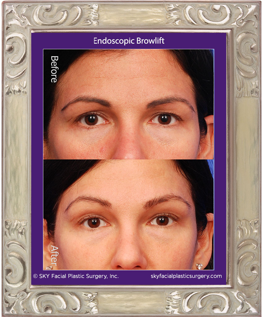 Endoscopic Brow Lift - San Diego
