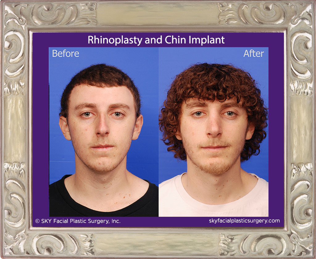 Chin Implant and Rhinoplasty - San Diego