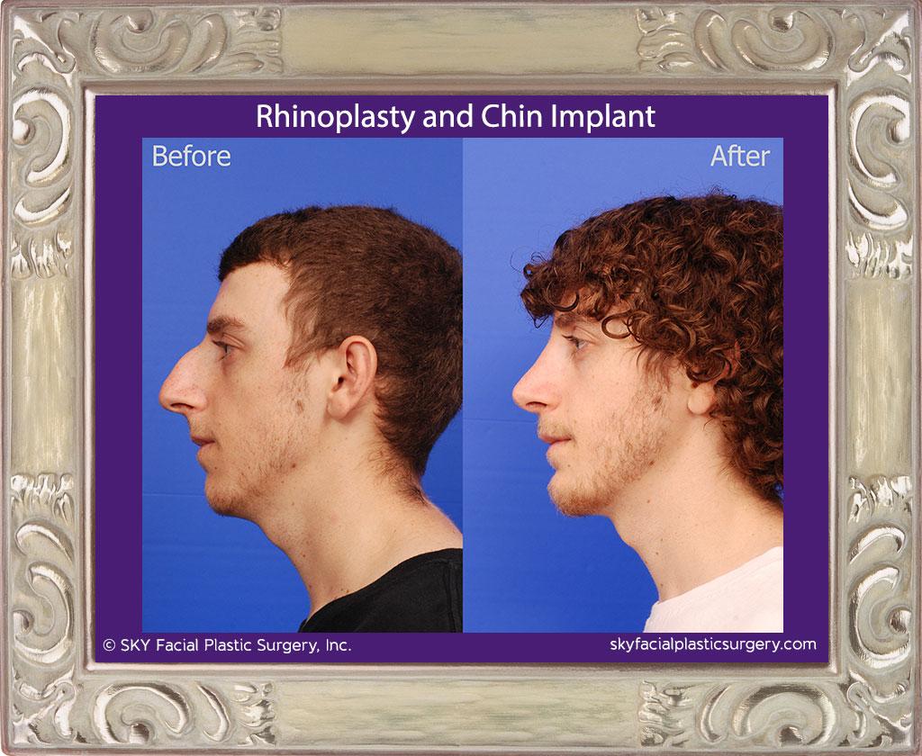 Rhinoplasty and Chin Implant - San Diego