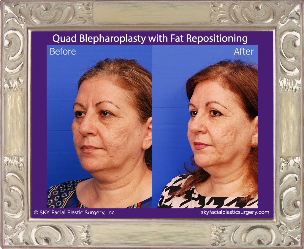 Upper and lower lid blepharoplasty with fat repositioning