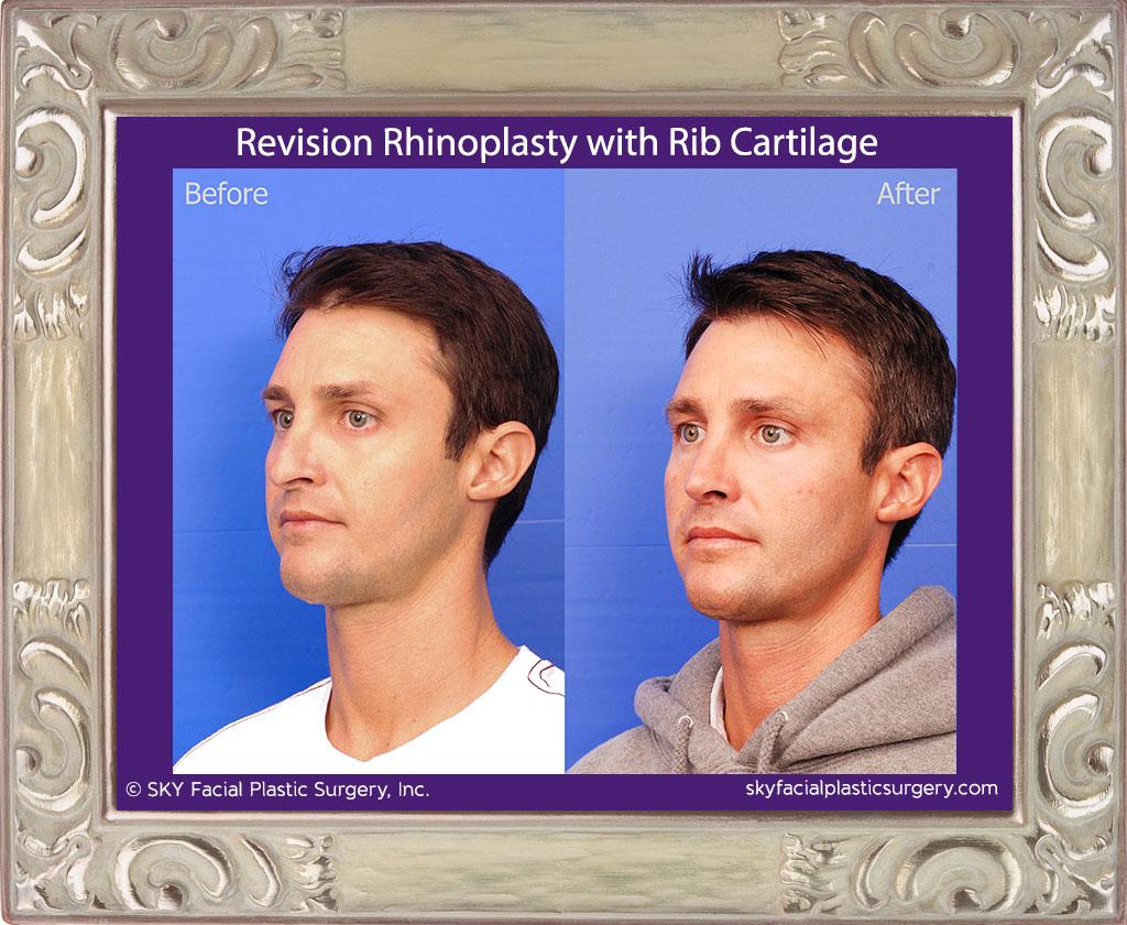 Revision Rhinoplasty with Rib Cartilage - San Diego