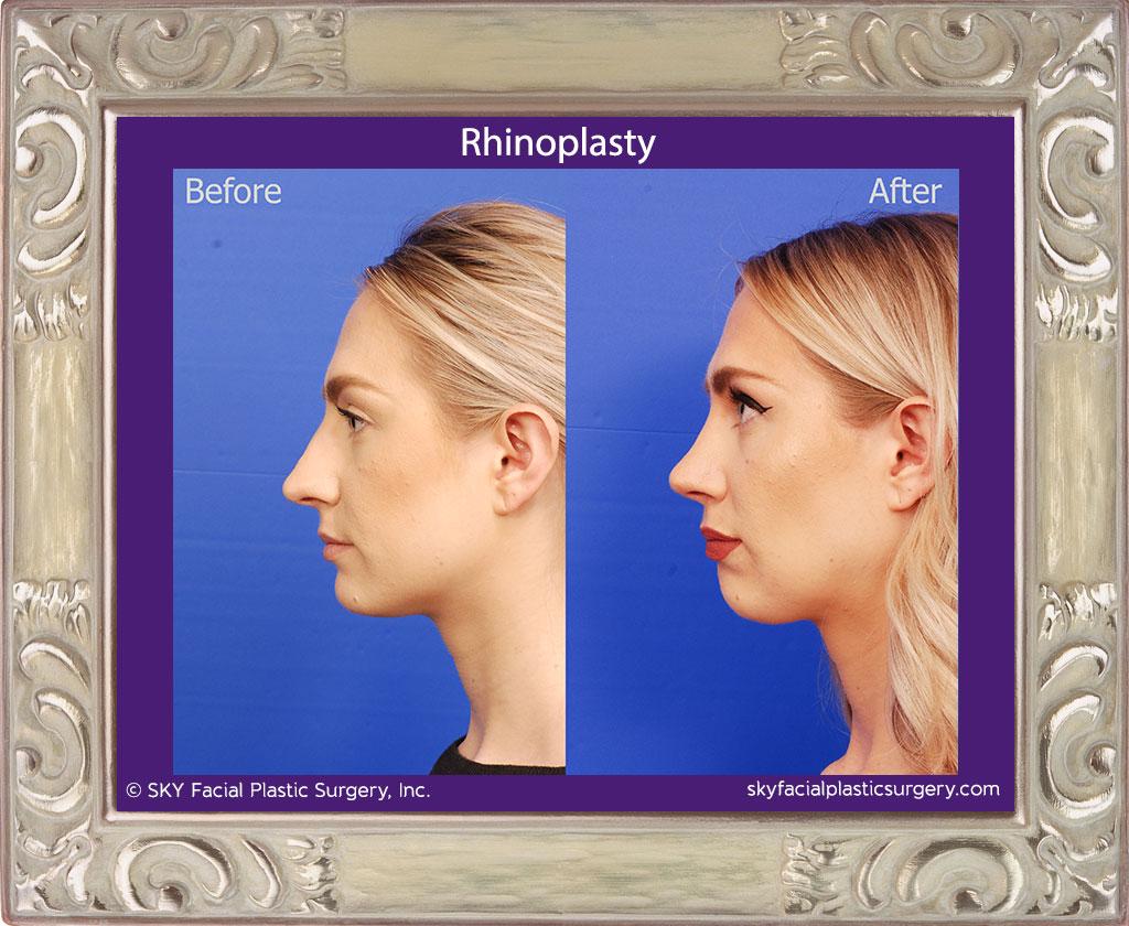 Rhinoplasty (Nose Job) - San Diego's Best Rhinoplasty
