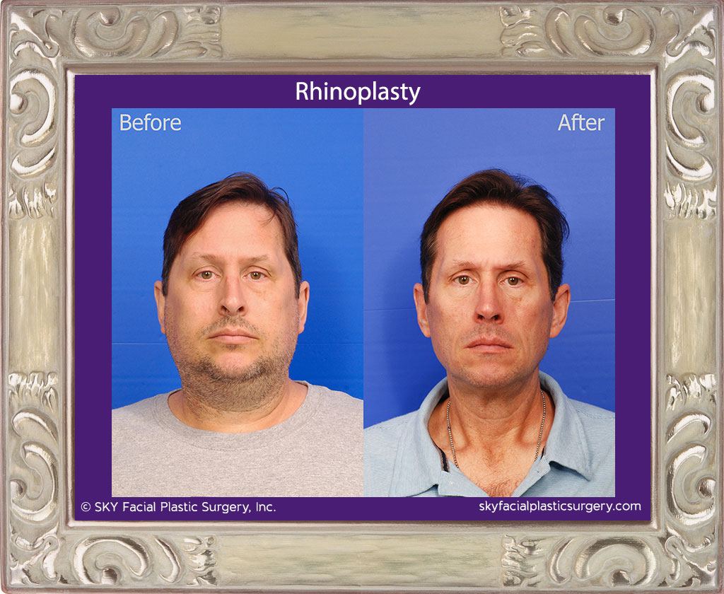 SKY-Facial-Plastic-Surgery-Rhinoplasty-49A.jpg