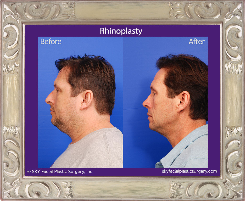 SKY-Facial-Plastic-Surgery-Rhinoplasty-49B.jpg