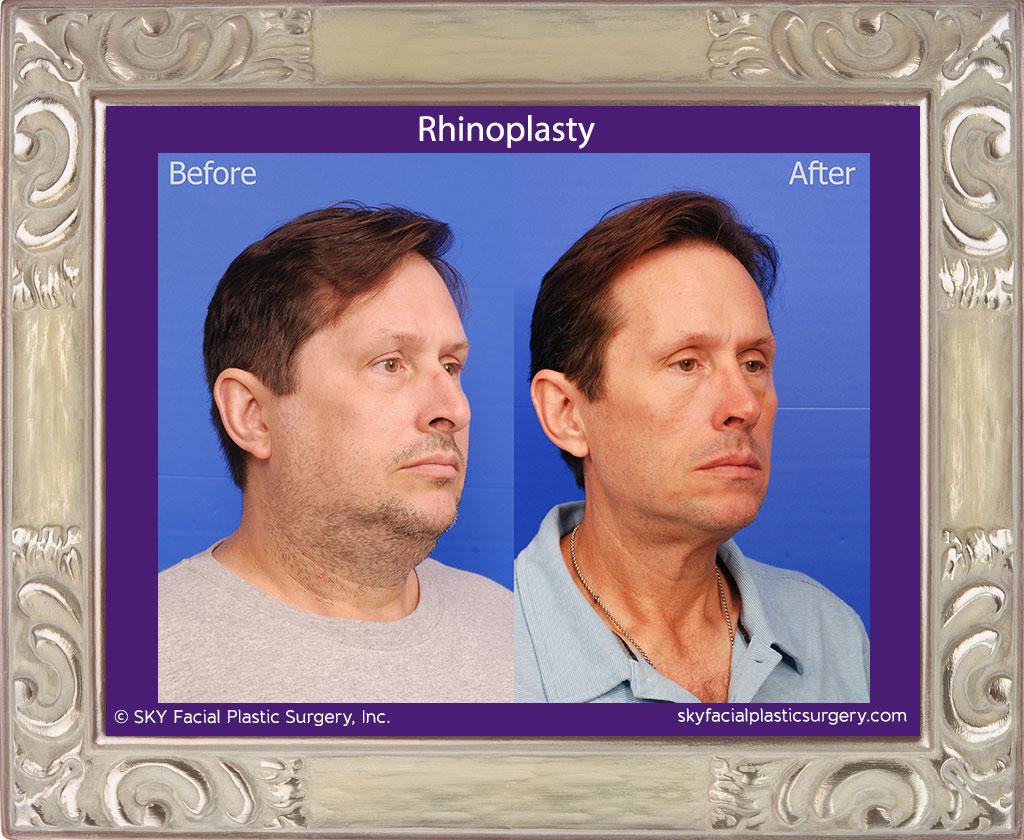 SKY-Facial-Plastic-Surgery-Rhinoplasty-49E.jpg