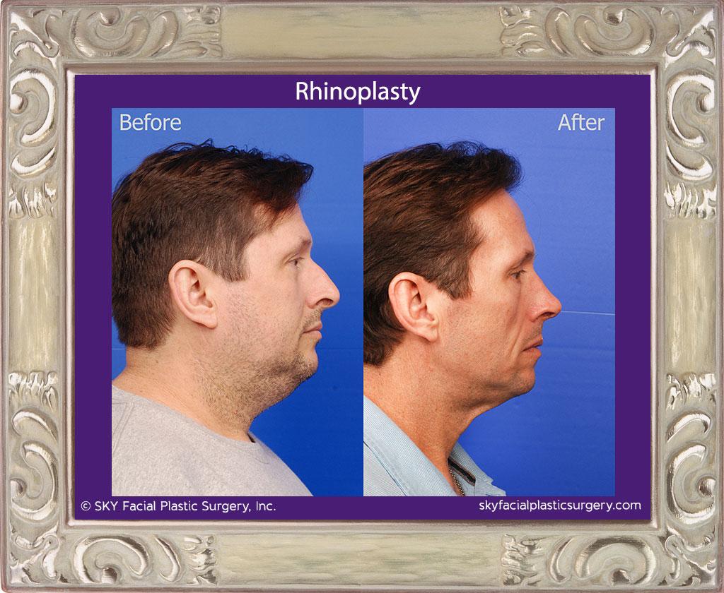 SKY-Facial-Plastic-Surgery-Rhinoplasty-49D.jpg