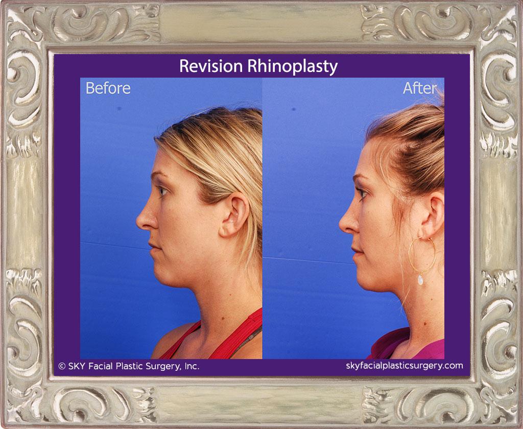 Revision Rhinoplasty - San Diego