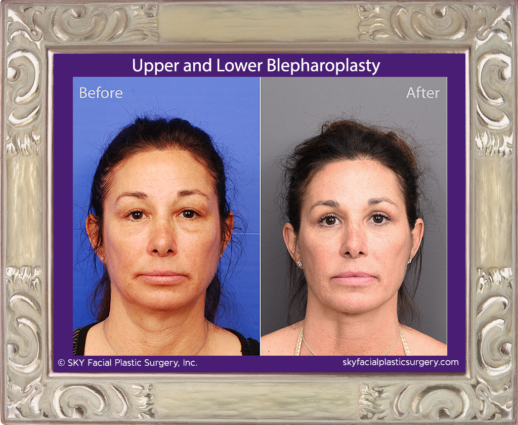 SKY-Facial-Plastic-Surgery-Lower-Lid-Blepharoplasty-28A.jpg