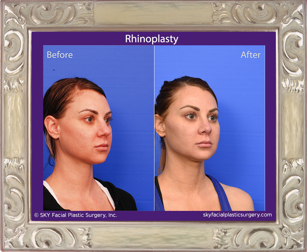 Cosmetic rhinoplasty - San Diego