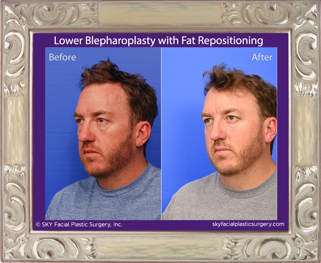 SKY-Facial-Plastic-Surgery-Lower-Lid-Blepharoplasty-29B.jpg