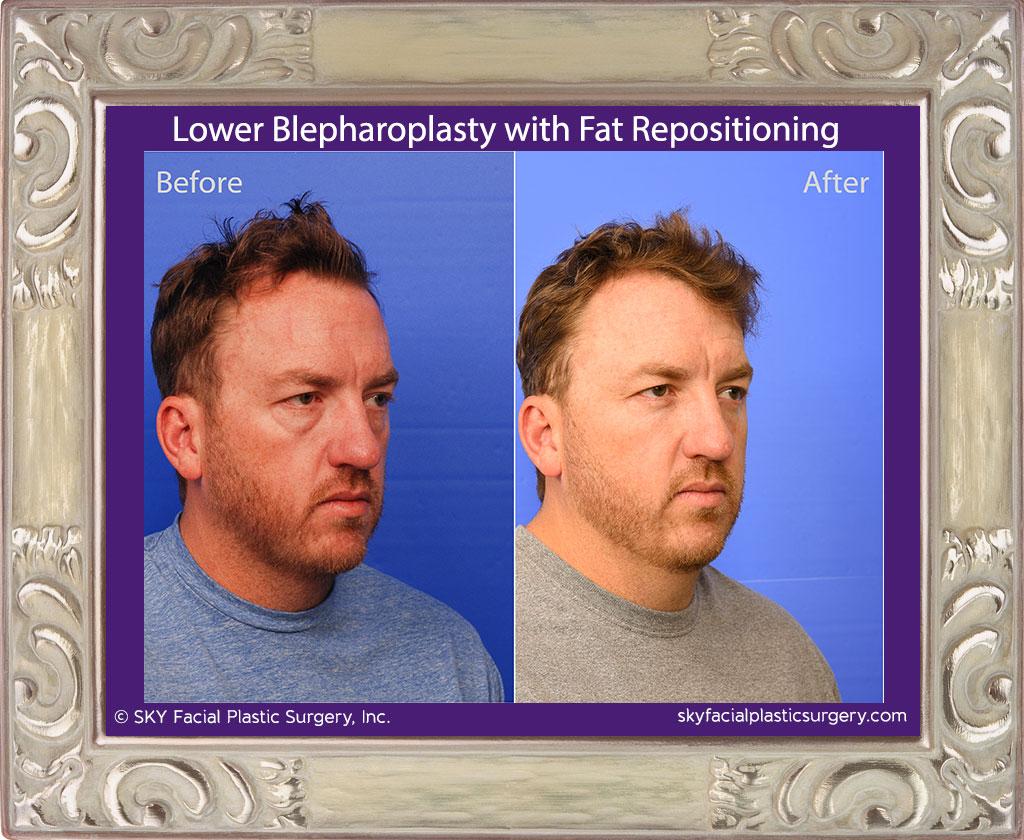 SKY-Facial-Plastic-Surgery-Lower-Lid-Blepharoplasty-29C.jpg