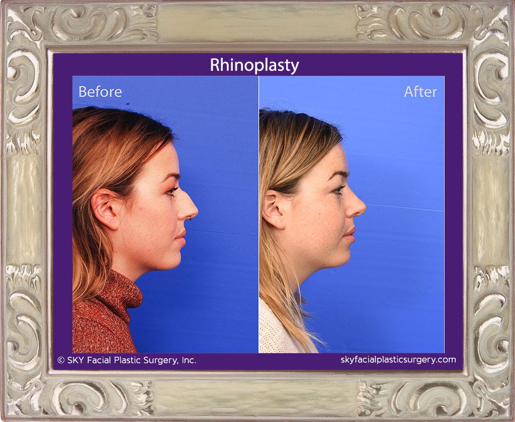 SKY-Facial-Plastic-Surgery-Rhinoplasty-59E.jpg