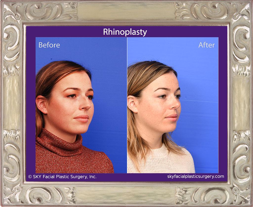 SKY-Facial-Plastic-Surgery-Rhinoplasty-59D.jpg
