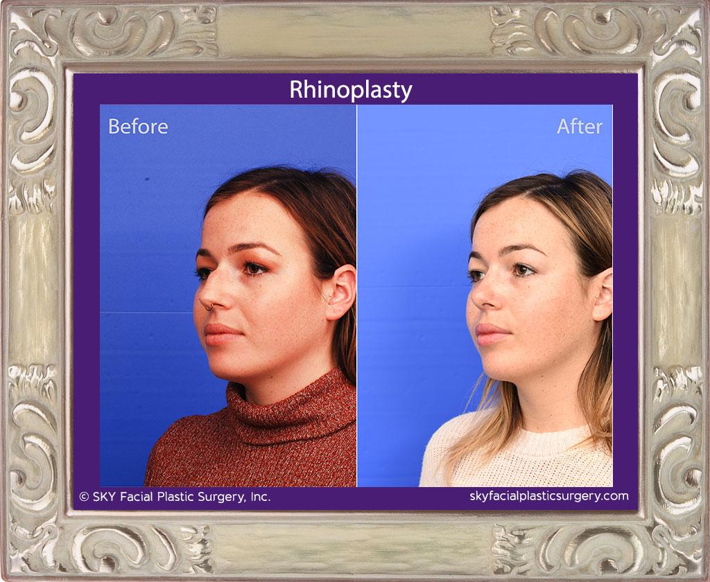 SKY-Facial-Plastic-Surgery-Rhinoplasty-59C.jpg