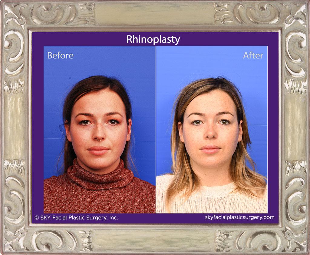 SKY-Facial-Plastic-Surgery-Rhinoplasty-59A.jpg