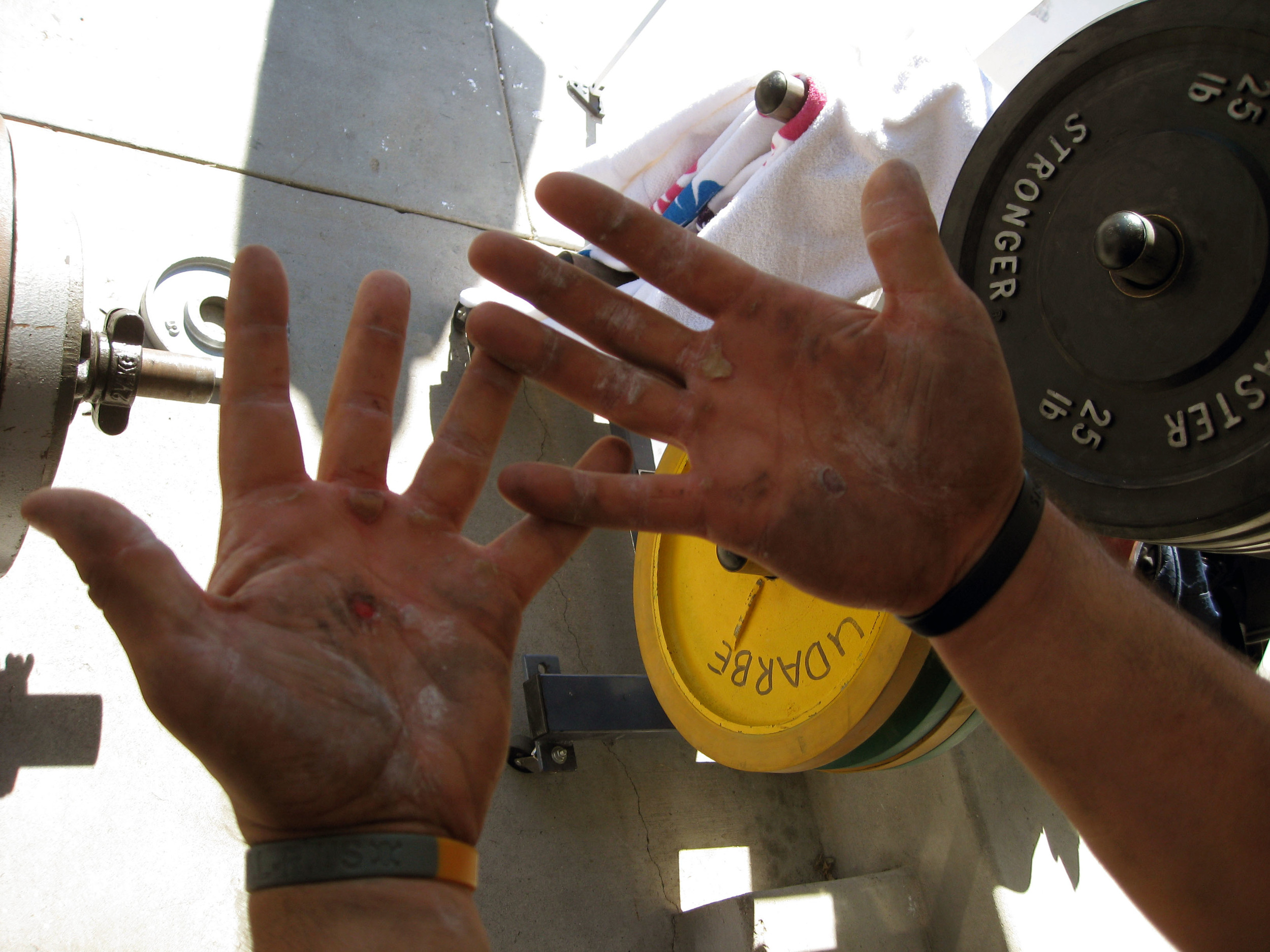 Torn Callouses and dirty hands