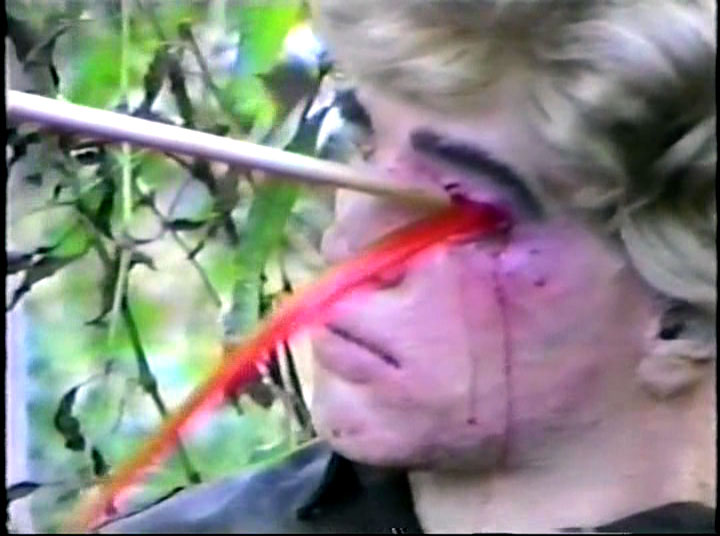Dude's head was filled with red tempra paint.