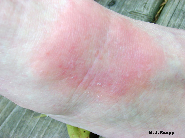 A bull's eye rash is one of the characteristic symptoms of Lyme disease.
