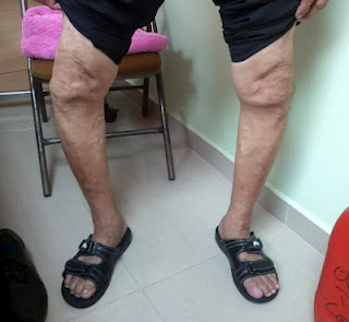 A patient in Panama, who  will receive total knee replacement surgery.