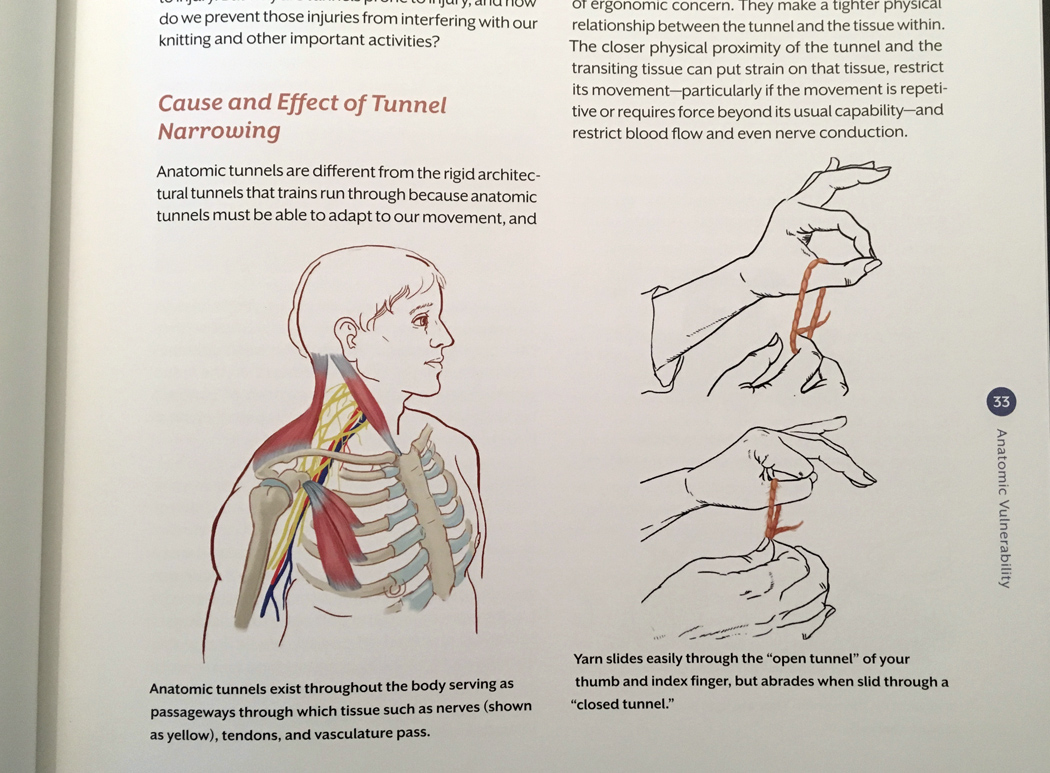 Carson Demers,  Knitting Comfortably,  page 35, Using yarn to describe the effects of an open or closed anatomical tunnel