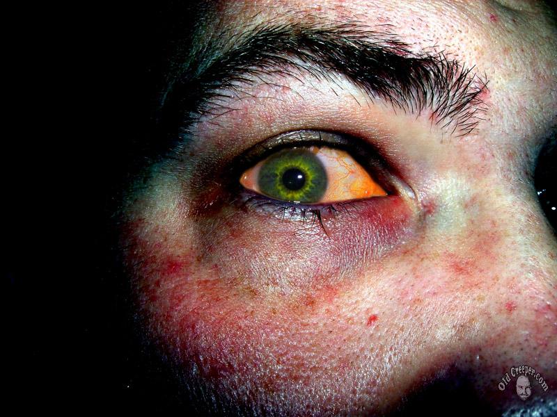 eye_ 004_zombified.jpg