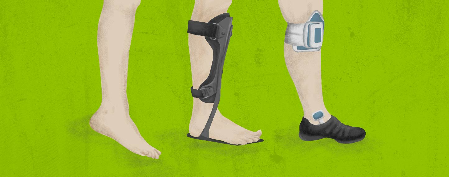 How to Keep Walking With MS-Related Foot Drop-01.jpg