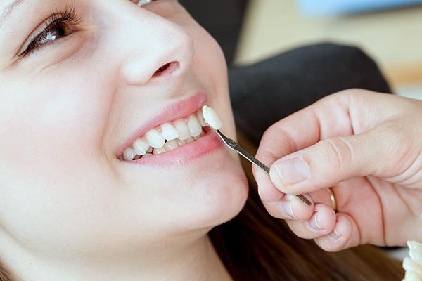 Veneers, Smile Concepts, Dentist, Christchurch
