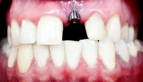 Dental Implants, Smile Concepts, Dentist, Christchurch