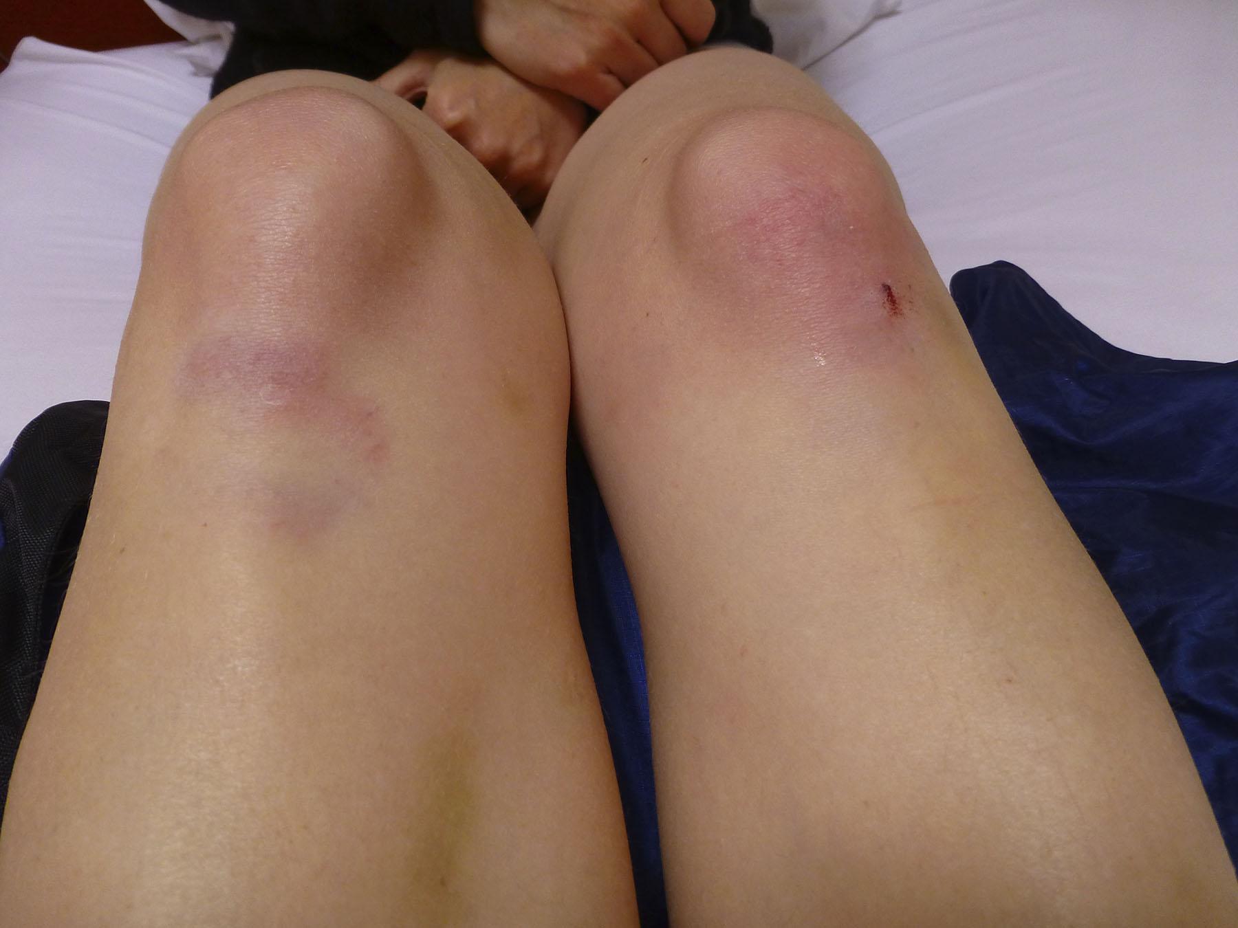 Beaten And Bruised