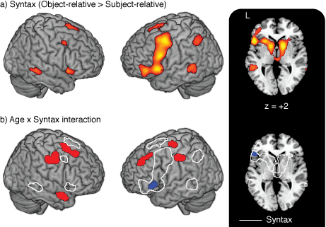 Top:  Brain regions that show an increased response for syntactically-complex spoken sentences in both young and older adults. Bottom:  Regions in which this syntax-related activity differs as a function of age; note that older adults show increased activity in numerous regions of frontal and prefrontal cortex outside the core syntax network. (From Peelle et al., 2010, Cerebral Cortex )
