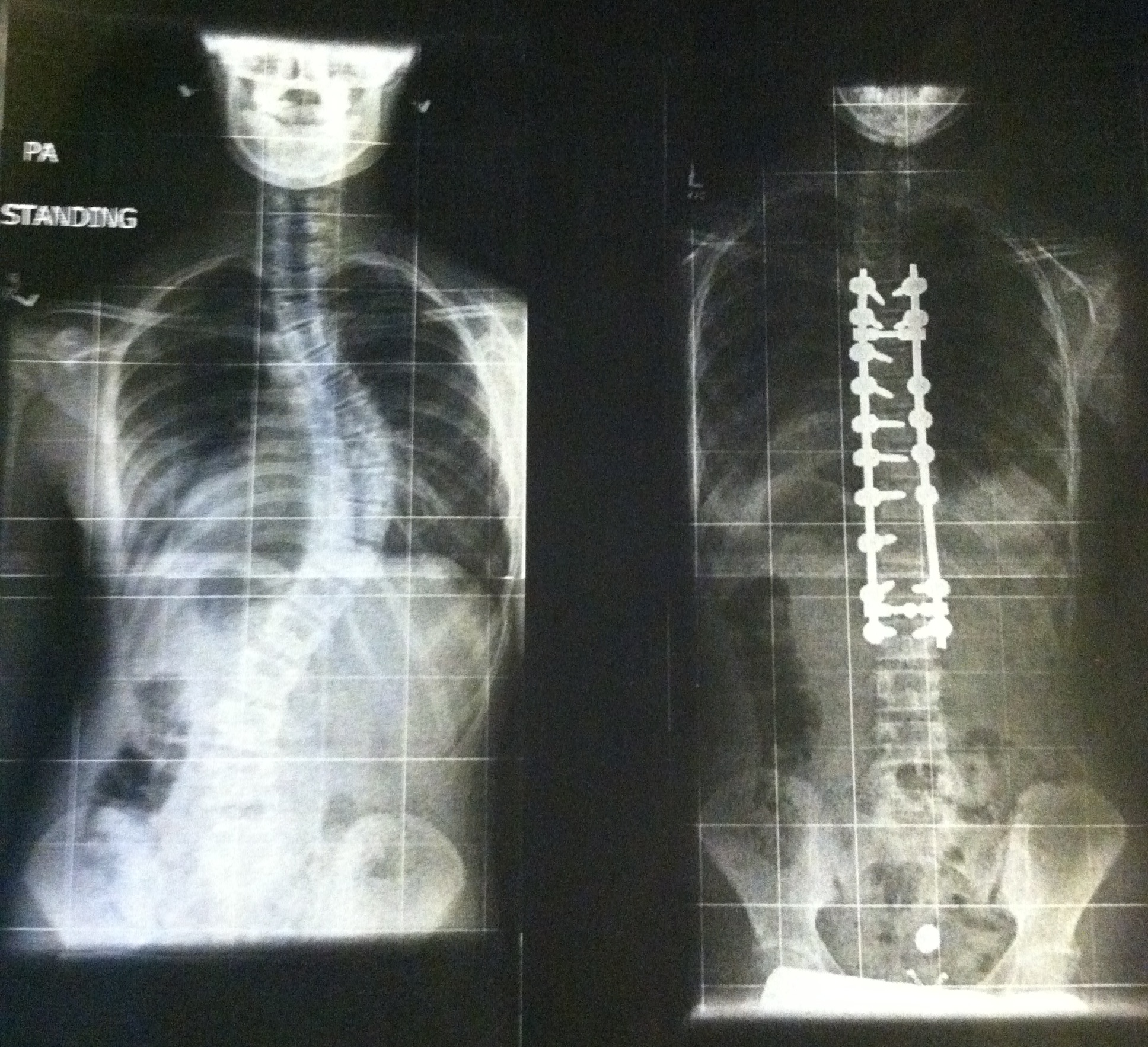 Before and After Surgery X-Rays