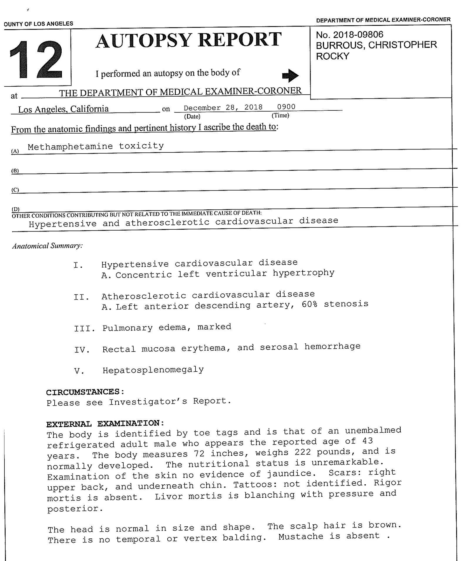 The Chris Burrous' Autopsy Report — FTVLive