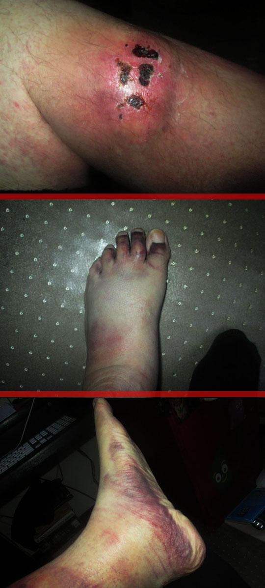 1. legandfoot_april10-18.jpg