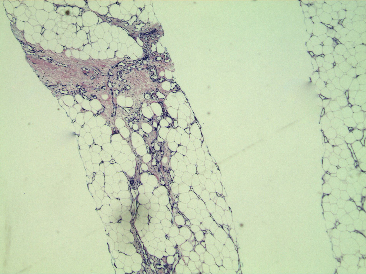 Image 1:  A low power magnification of two cores showing a vascular proliferation within fat and fibrous stroma.