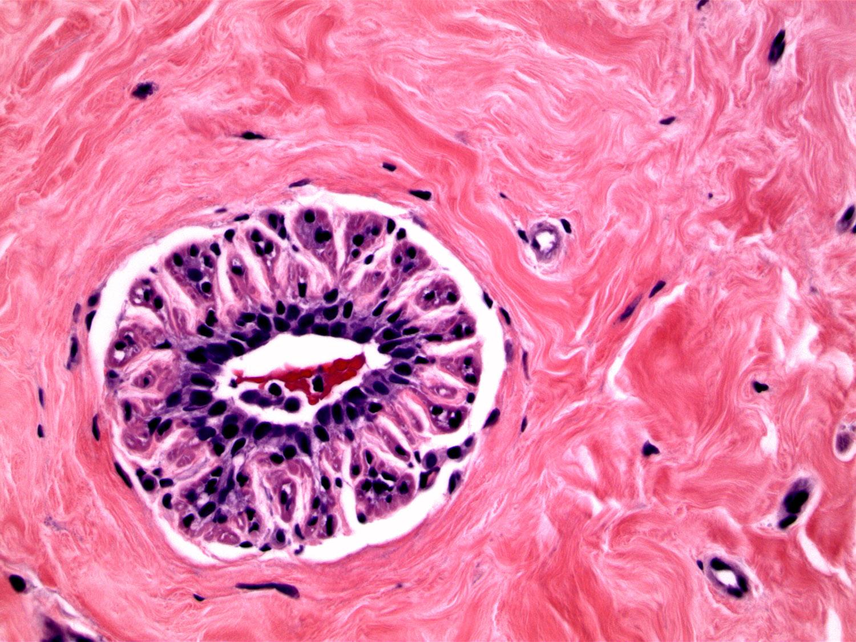myoid atrophy.jpg