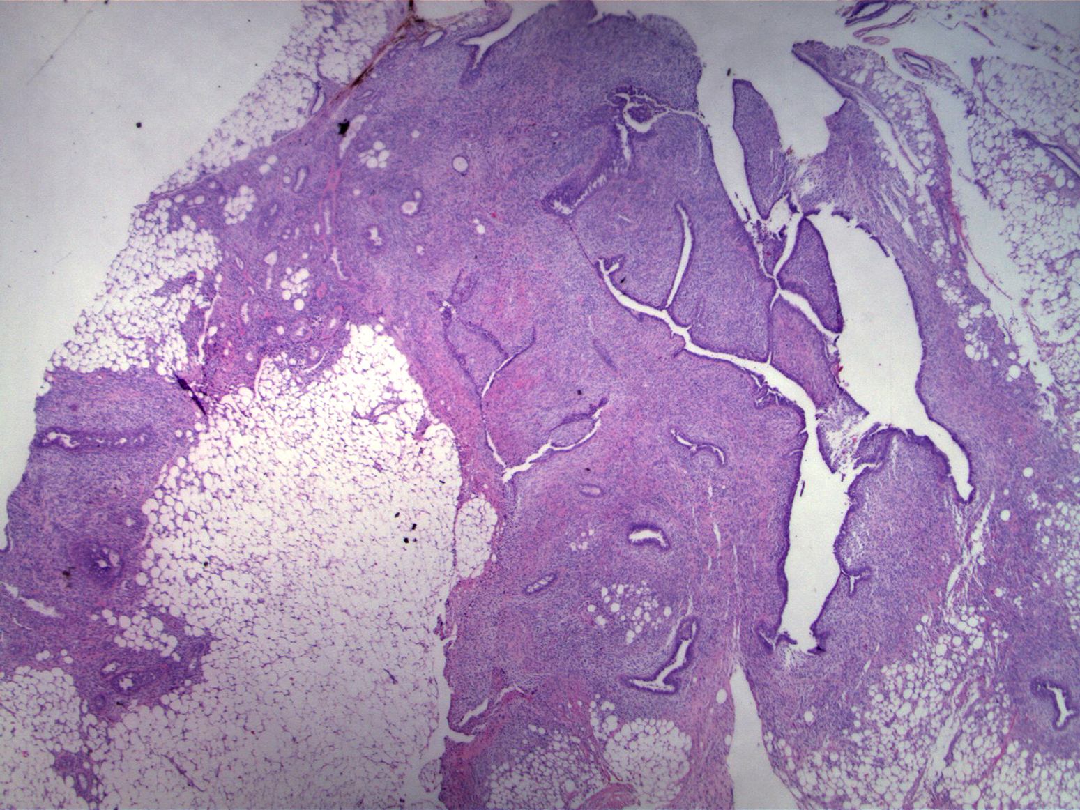 low power magnification shows a fibroepthelial Lesion characterized by cellular stroma and distorted epithelial arrangements. The lesion appears to have an irregular interface with adjacent adipose tissue.