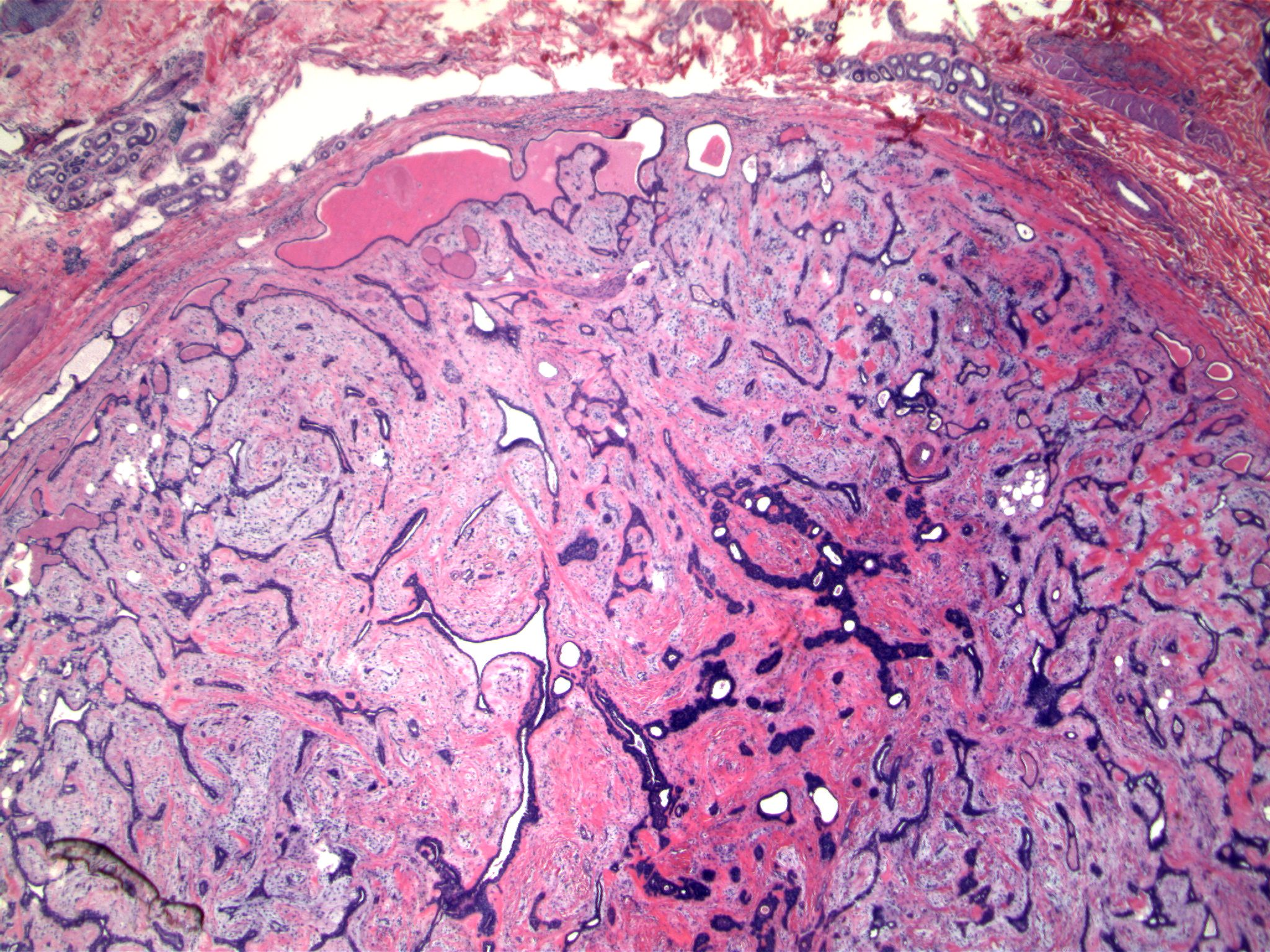 Image 4:  Two groups of eccrine units at the top of the figure show this lesion to be present in the deep dermis/subcutaneous tissue and not breast proper.