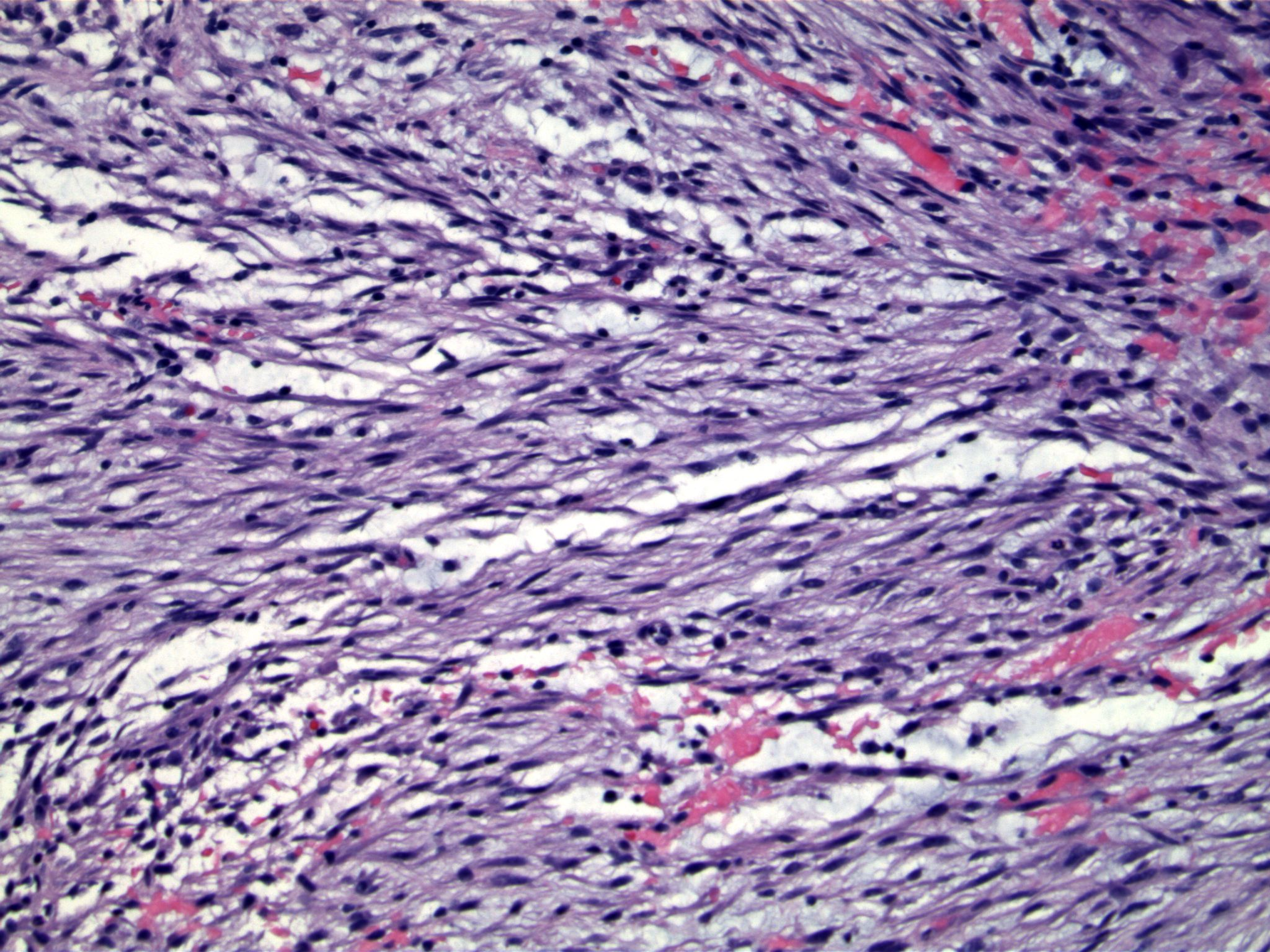 Image 3. Spindled cells have the appearance of cells in tissue culture. Note areas of hemorrhage.