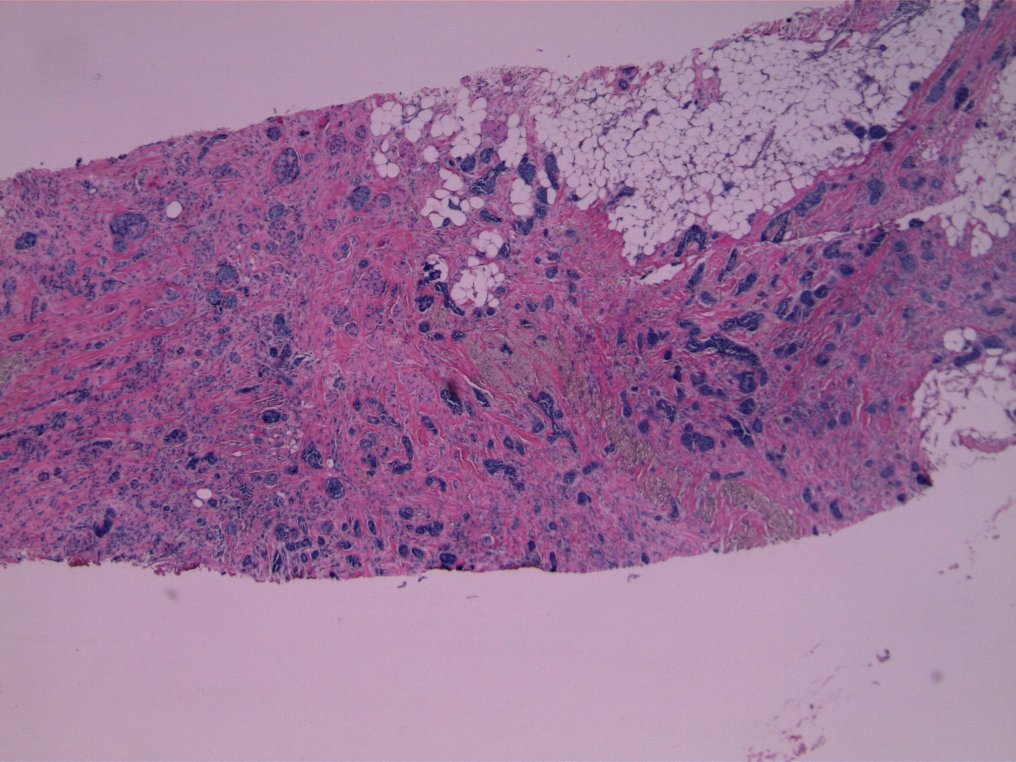 Image 1.  Small epithelial nests diffusely infiltrate stroma and fat.